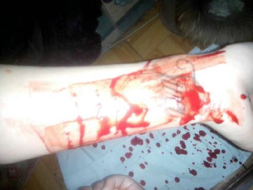 胳膊被玻璃划伤图片_2014自残手臂流血图自残割手臂流血图片 手臂自残流血图图片
